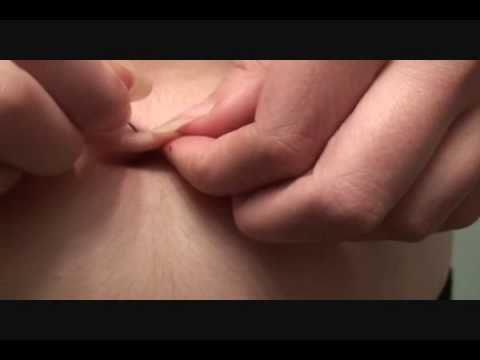 Insane Girl Pierced Belly Button Herself