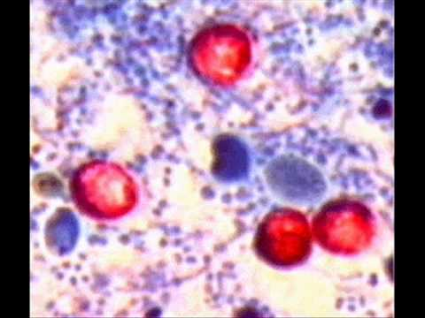 CRYPTOSPORIDIUM PARVUM , HEALTH EDUCATION , INFECTION CONTROL (ICSP) , URDU / HINDI