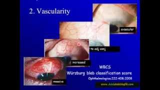 Download Glaucoma bleb evaluataion in Early post operative period 3Gp Mp4