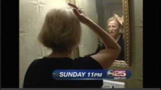 Women's Hair Loss and Treatments on ABC News