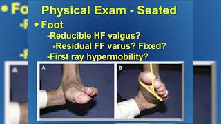 Dr. Evan Loewy, Posterior Tibial Tendon Dysfunction - Florida Orthopaedic Institute