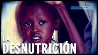 La desnutrición: Documental Completo