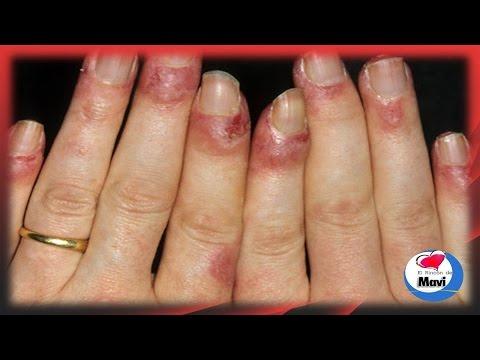 Remedios caseros y naturales para el lupus thumbnail