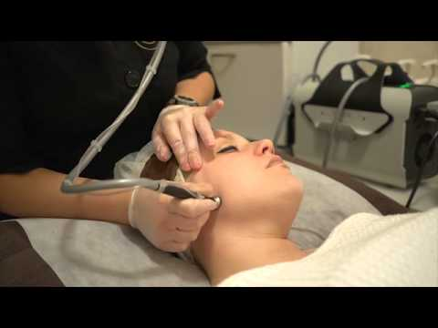 Microdermabrasion demonstration & benefits