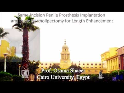 Penile Prosthesis Implantation and simultaneous elongation