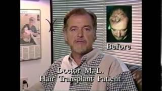 Doctor M.L Hair Transplant Patient