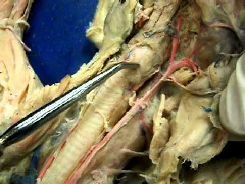 Cat arteries from heart and arm