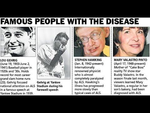 Understanding Amyotrophic Lateral Sclerosis (ALS) Disease
