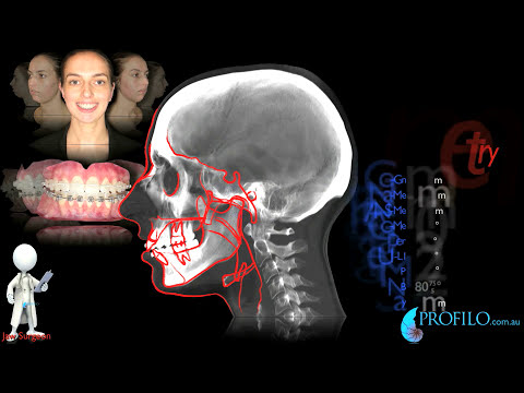 Erin has jaw surgery. Watch video-end first. Before & after jaw surgery. Correction dental overbite