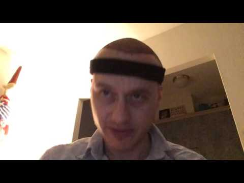 Fue hair transplant day 3 post op,turkey with longevita