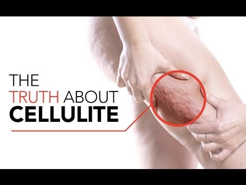 How to GET RID OF CELLULITE (Best Exercises and Tips to Reduce Cellulite!!)