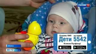 Таня Родионова, 5 месяцев, деформация черепа