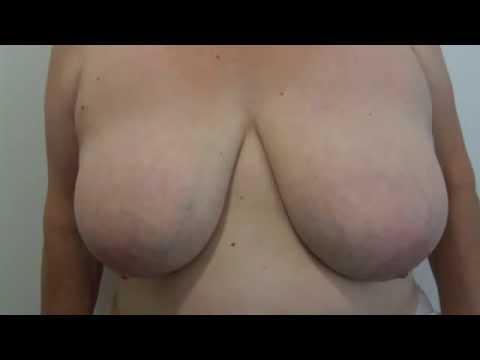 Wideo przestawiające operację plastyczną redukcji piersi