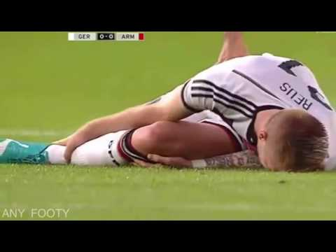 Marco Reus horrible injury before WC 2014 | Ready for Euro 2016 | Reus