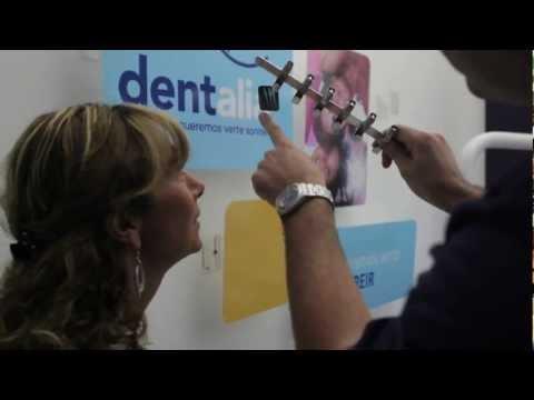 Header of dentalia