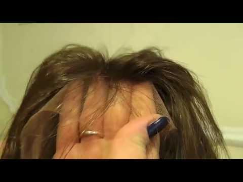 Trapianto capelli san raffaele