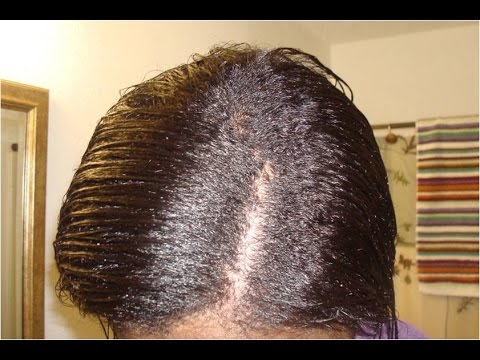 How To Grow 1 Inch of Hair In 7 days - NO INVERSION METHOD!!