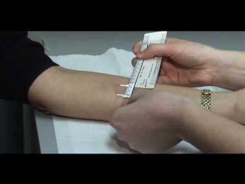 TB Skin Test - Mantoux Method