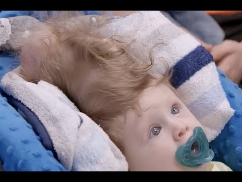 Miracle surgery saves baby born with brain growing outside his head