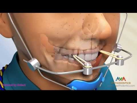 Facemask (Reverse Pull Headgear) - Orthodontic Device