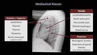 How to Interpret a Chest X-Ray (Lesson 5 - Cardiac Silhouette and Mediastinum)