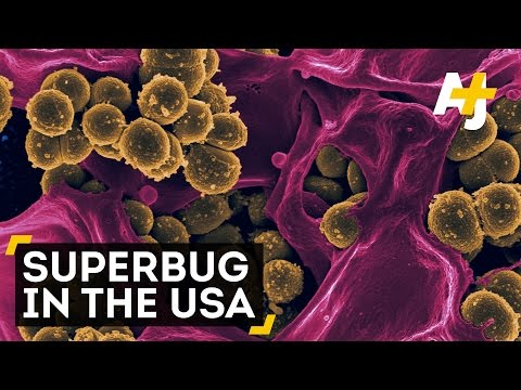 Antibiotic-Resistant Superbug Found In The U.S.