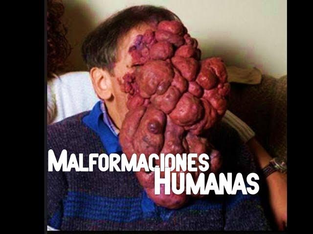Malformaciones Humanas