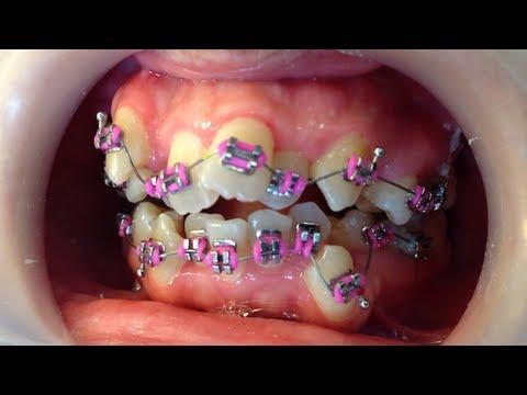orthodontic braces: getting braces
