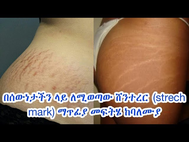 Causes and treatments of Stretch Marks