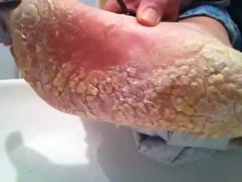 Dry cracked foot skin