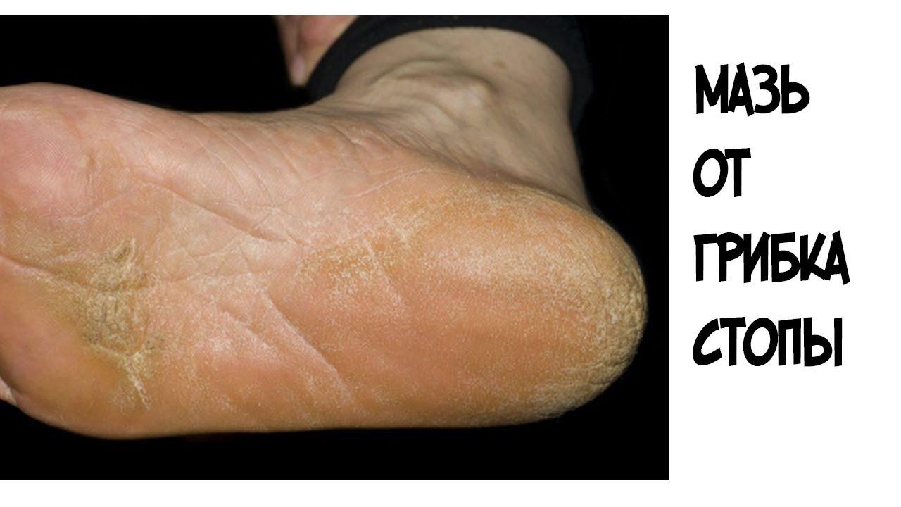 Как лечить грибок стоп на ногах в домашних условиях 437