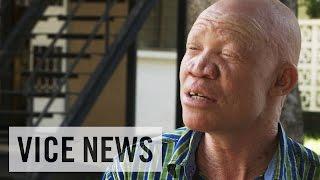 Albinos in Africa Activism in Tanzania: VICE News Meets Josephat Torner