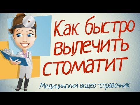Как лечить стоматит. только рабочие методы!