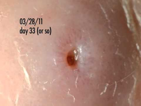 botfly larva in my ankle - days 32-34 update