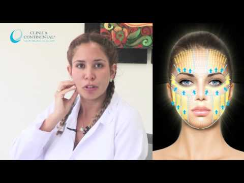 Rejuvenecimiento Facial - Ultraformer III