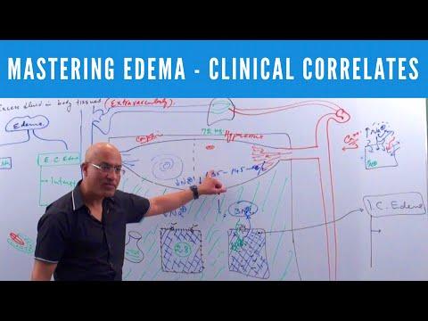 Mastering Edema - Types, Causes, Symptoms & Treatment thumbnail