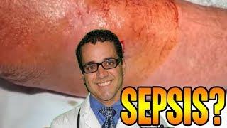 More Sepsis!  Patients that Went Septic