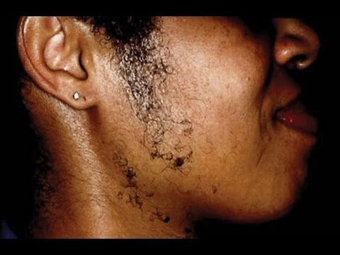 Help w/ PCOS, Hirsutism & Acne in Black Women
