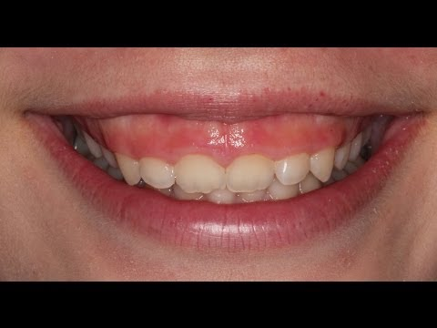 Correct gummy smile with Botox