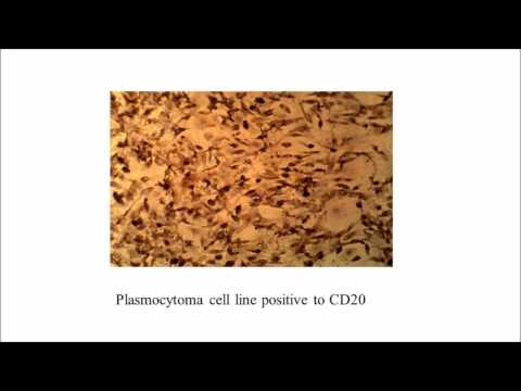 N DV-Rtx-Dox for hematological malignancy therapy - Video abstract 95250