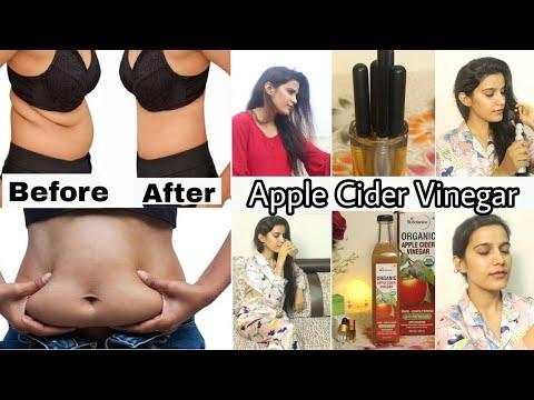 Drink Apple Cider Vinegar for Weight Loss,Skin,Hair, |St. Botanica Acv|Super Style Tips