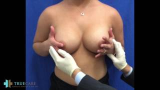POST OP BREAST AUGMENTATION | DIY BREAST MASSAGE AND EXERCISES