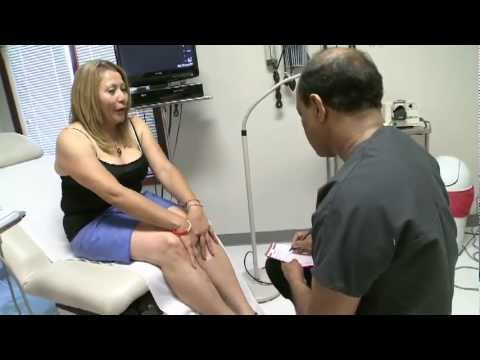 Varicose Veins Treatment at Veins Without Surgery