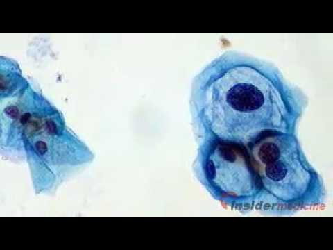 Insidermedicine In Depth - March 25, 2010 - Oral HPV Infection