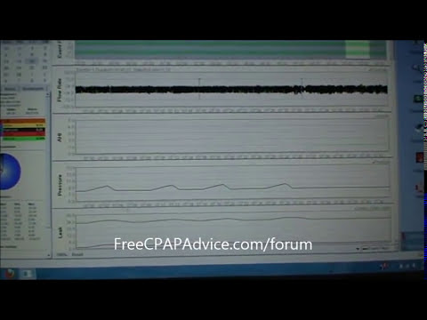 Interpret Your Sleep Report Data From SleepyHead Free Software Monitoring Program Free CPAP Advice