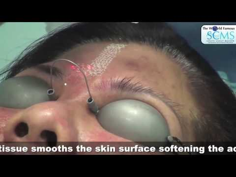 Treatment Acne Scarring
