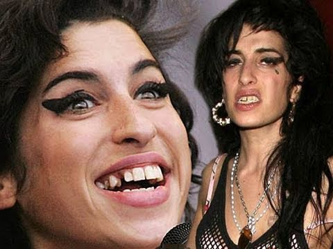 Amy Winehouse's Disastrous Face