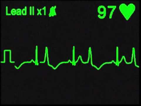 Ventricular Bigeminy Rhythm Ventricular Bigeminy Ecg