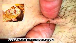 5 Pops, 2 Dilated Pores (DPOWs), 3 Gold Mask Peels!  Gold Comedones
