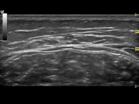 Sural Nerve Calf to Ankle